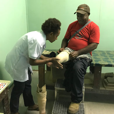 A man in a red t-shirt and cap is sitting on a treatment table; he has a right below knee amputation. A lady in a white coat is fitting a liner to his stump, next to him we can see a prosthetic device ready to be fitted, on the floor.