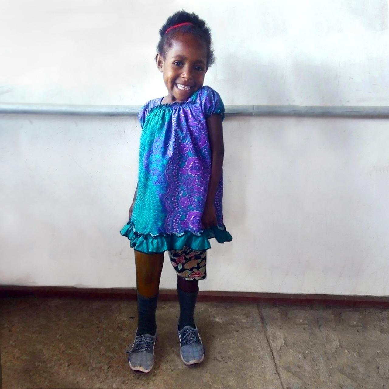 Violet stands on her new prosthesis without any extra support, she is wearing a colourful shirt and shorts and smiles brightly at the camera.