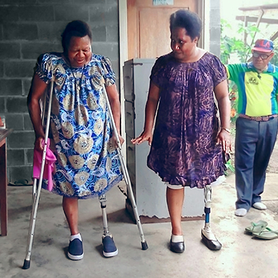 Two women, both with lower limb amputations and using a prosthesis, stand side by side. One woman is using crutches and looking down at her feet, while the other woman stands unsupported and is speaking encouragingly.
